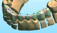 Zahnkrone 99,00 EUR Laborpreis: Best-Price-Dent rät zum Zahnkosten Preisvergleich