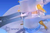 Bandscheibenprothese, was genau ist das?