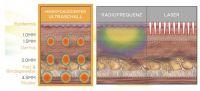 HIFU Ultraschall Gesichtsbehandlung: Vergleich der Einwirktiefe und Energieverteilung