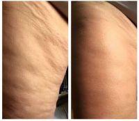 Das spektakuläre Ergebnis nach nur 4 Wochen Behandlung.