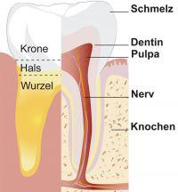 karies, Karies behandeln, Karies stoppen, Karies vorbeugen, Kariesinfiltration, White Spots