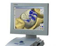 Die neue Zahnersatzmethode CEREC, gilt nicht nur als neue, sondern auch schnellere und bequemer Behandlungsalternative
