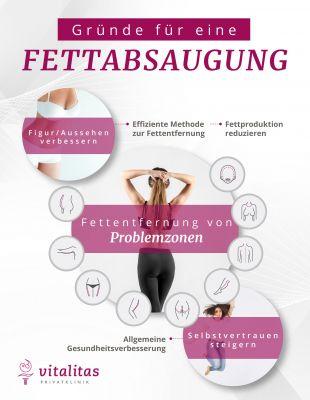 Vitalitas Fettabsaugung Infografik