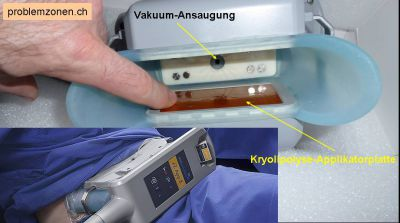 Der Coolsculpting-Kryolipolyse-Applikator (Anwendung am Bauch)