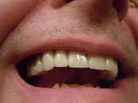 Zahnkrone – was ist zu beachten?