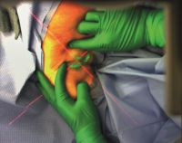 Die Position des Lymphknotens wird während der OP über eine AR-Brille virtuell eingeblendet. (Bildquelle: Nutzungsrechte: Fraunhof