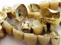 Zahn Gold, Zahngold, Bruchgold, Bruch Gold, Zahn und Bruchgold, Goldzahn, Goldzähne, Alter Schmuck Goldkette, Goldmünzen, Goldring